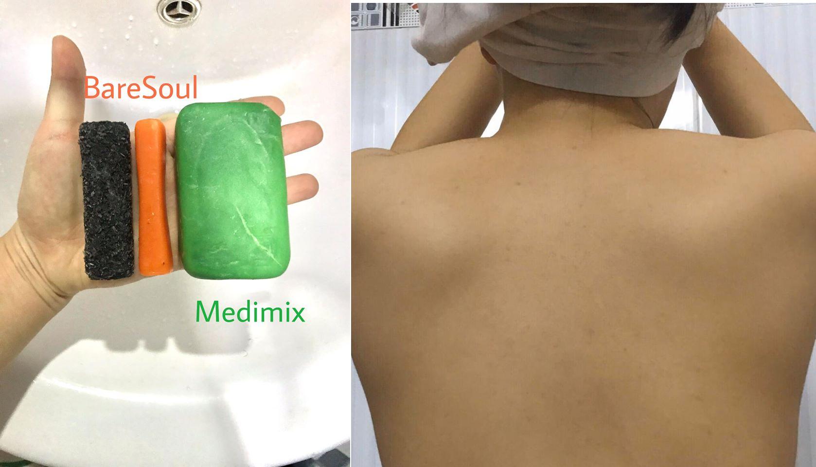 review sản phẩm trị mụn lưng